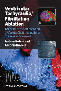 Обложка «Ventricular Tachycardia / Fibrillation Ablation. The state of the Art based on the VeniceChart International Consensus Document»