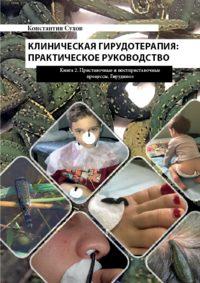 Обложка «Клиническая гирудотерапия: практическое руководство. Книга 2 Приставочные и постприставочные процессы. Гирудиноз»