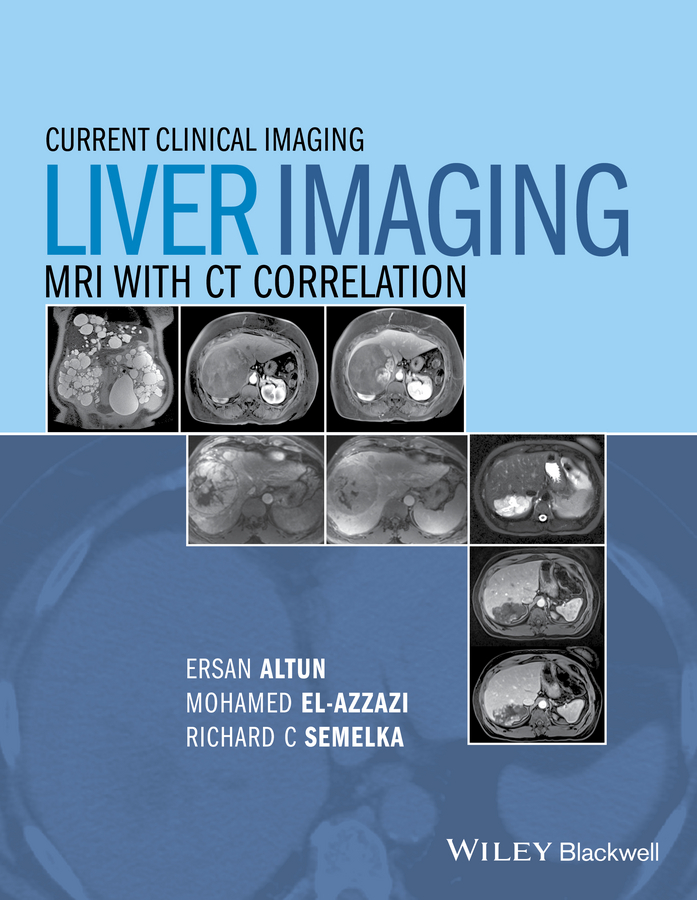 Mohamed El-Azzazi Liver Imaging. MRI with CT Correlation все цены