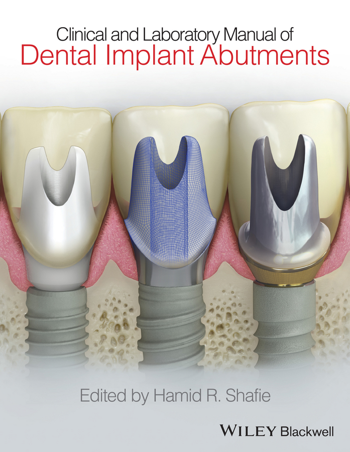 Hamid Shafie R. Clinical and Laboratory Manual of Dental Implant Abutments цена и фото