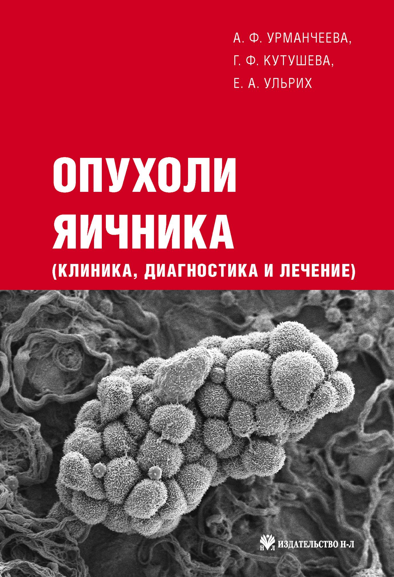 Е. А. Ульрих Опухоли яичника: клиника, диагностика и лечение