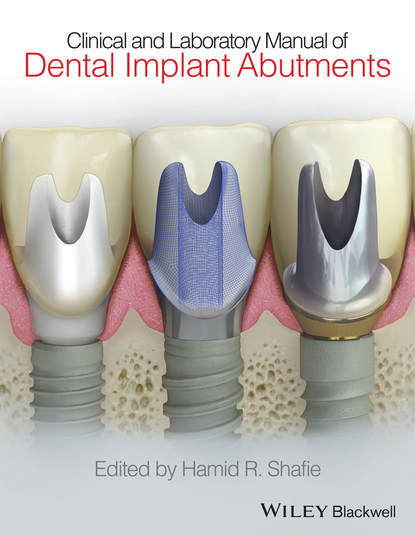 Hamid Shafie R. Clinical and Laboratory Manual of Dental Implant Abutments time dependent local scour around groynes and bridge abutments