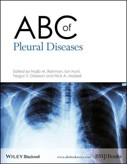 Ian Hunt ABC of Pleural Diseases ian hunt abc of lung cancer
