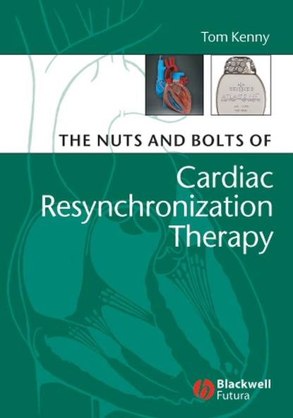 Фото - Группа авторов The Nuts and Bolts of Cardiac Resynchronization Therapy tom kenny the nuts and bolts of cardiac pacing