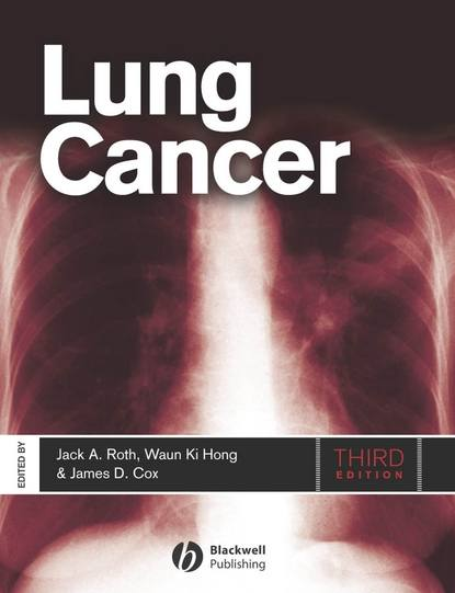 Фото - Jack Roth A. Lung Cancer jack roth a lung cancer