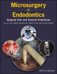 Microsurgery in Endodontics