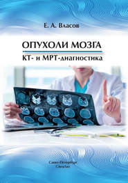 Опухоли мозга. КТ- и МРТ-диагностика
